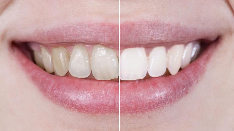 dientes_alimentos