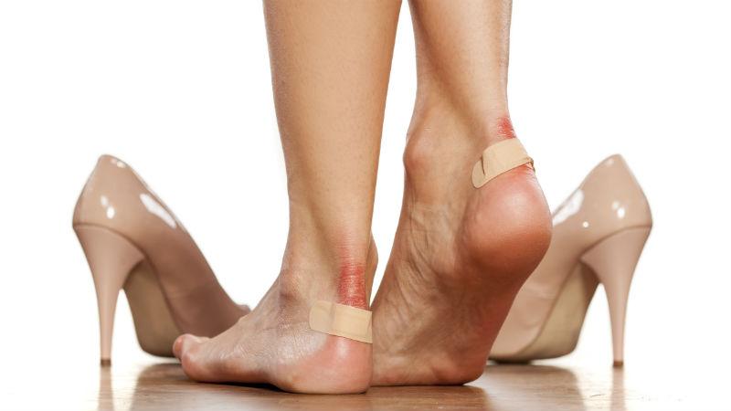 Trucos para evitar las rozaduras en los pies