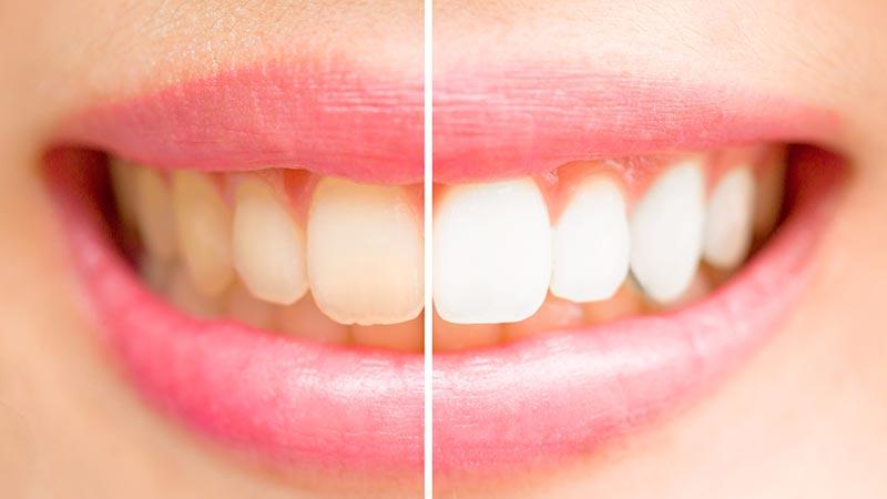 Blanqueamiento dental: tipos y efectos secundarios