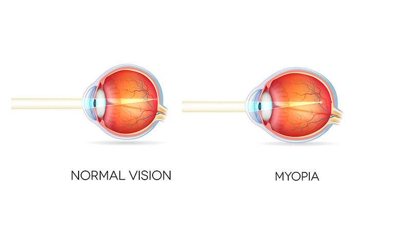 miopía forma del ojo