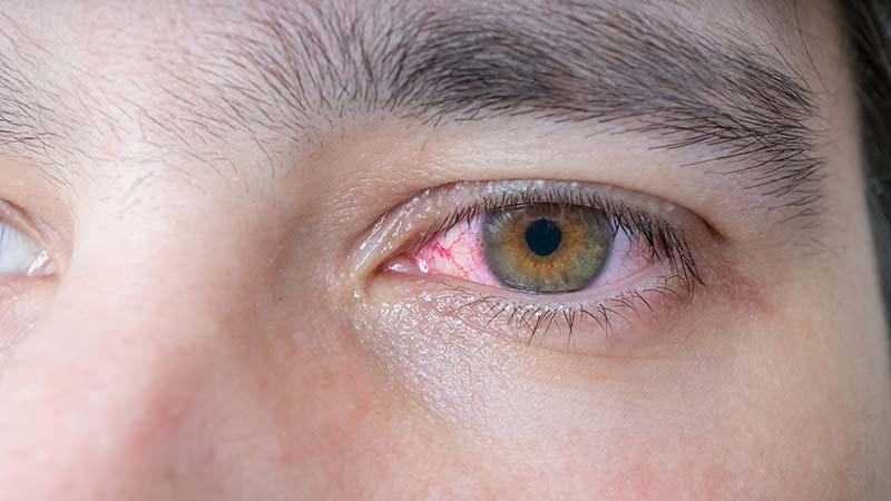 razones por las que se nos ponen los ojos rojos