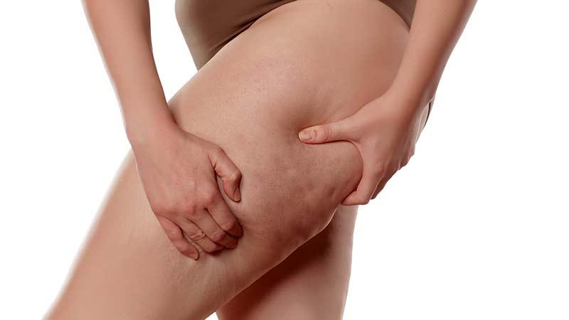 10 remedios naturales contra la celulitis estética